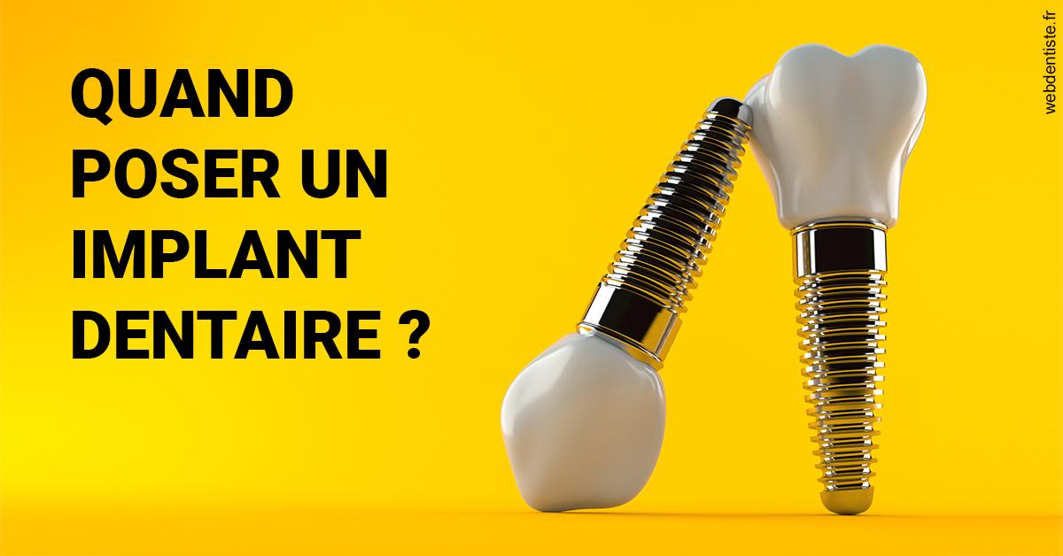 https://www.clinilac.ch/Les implants 2