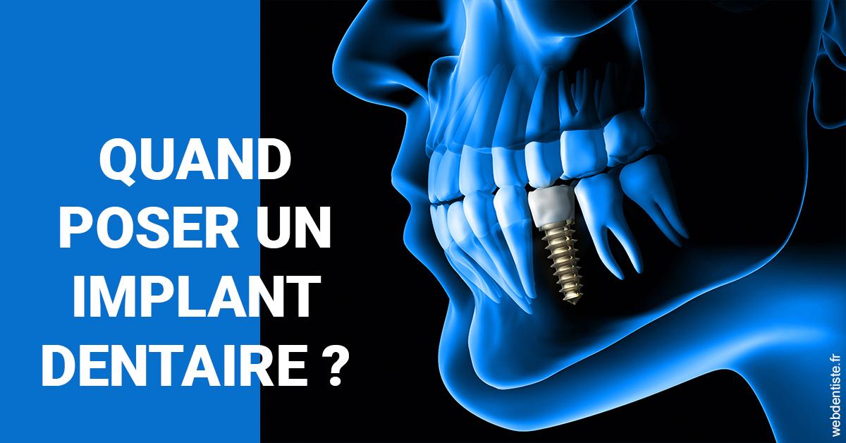 https://www.clinilac.ch/Les implants 1